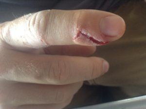 The worst of Andrew's injuries on what he calls his 'mouse finger'.